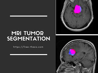 Brain Tumor Segmentation in MRI Images